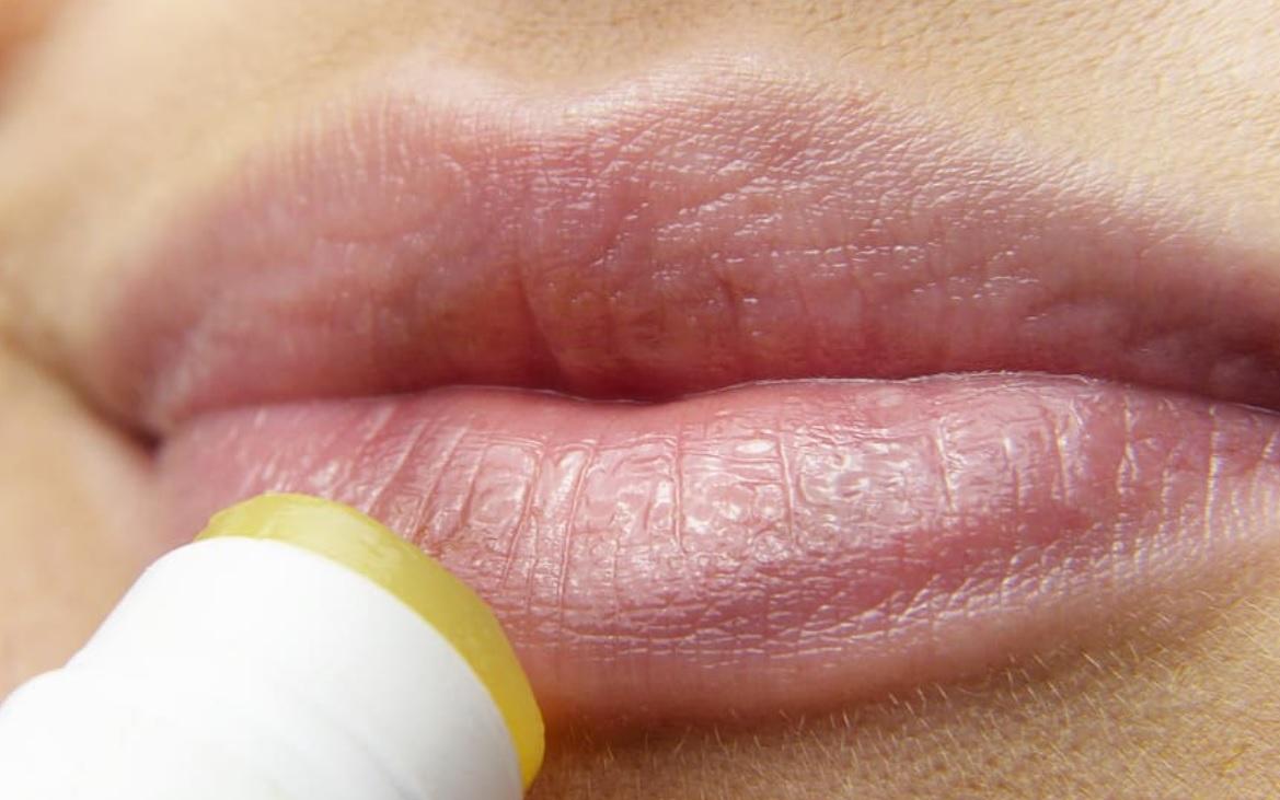 Герпес на губах - лікування та профілактика