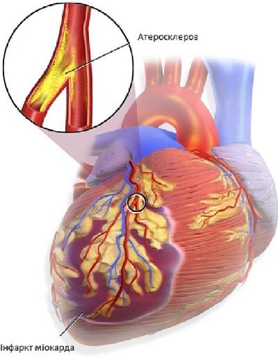 heartattackr.jpg (61.52 Kb)