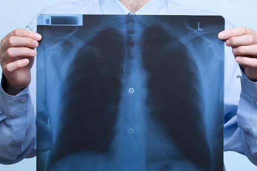 Пневмония: виды и лечение