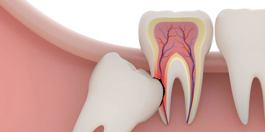 Последствия несвоевременного удаления зубов мудрости